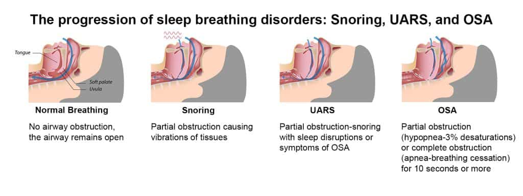 Progression of sleep breathing disorders