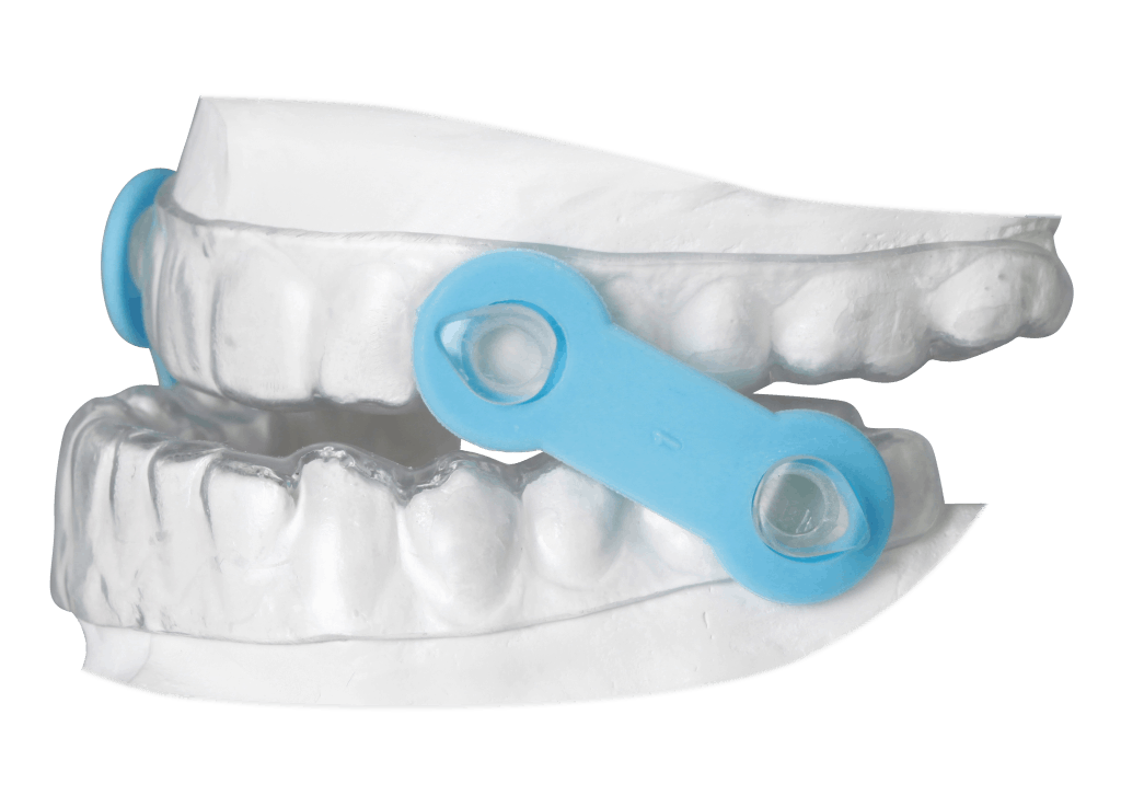 gergens_ema_oral_appliance